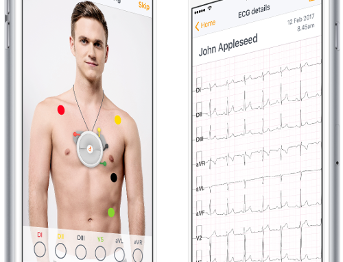 L'elettrocardiografo italiano per smartphonetra i vincitori del Compasso d'Oro 2020